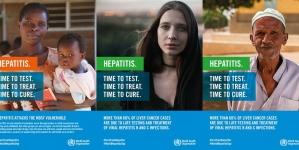 Svjetski dan hepatitisa: Virusni hepatitis je rastući svjetski zdravstveni problem
