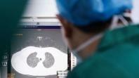 COVID-19: Šta se tačno desi s plućima ljudi koji se zaraze koronavirusom