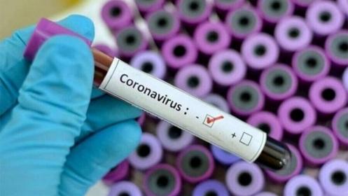 U Federaciji BiH od 1.415 testiranih uzoraka 173 pozitivna na koronavirus